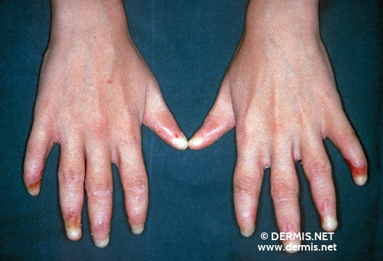 localisation: finger fingernail diagnosis: Epidermolysis Bullosa Hereditaria