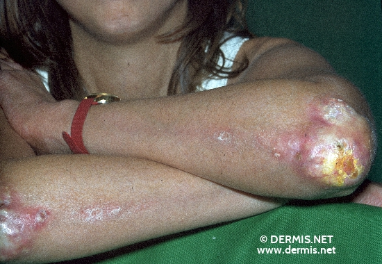 localisation: Ellenbogen Diagnose: Calcinosis cutis Mixed connective tissue disease