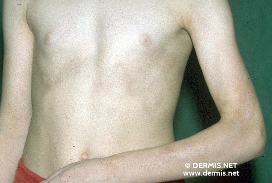 diagnosis: Morphea, Linear