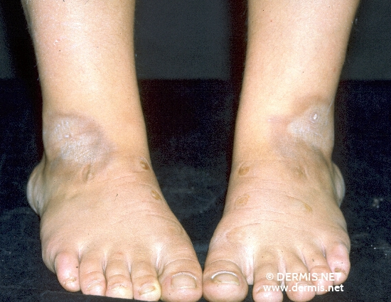 diagnosis: Localized Scleroderma