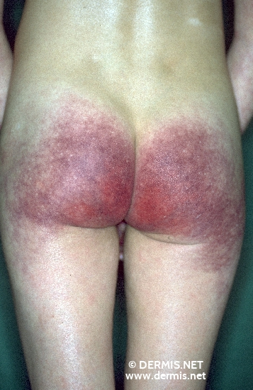 localisation: buttocks diagnosis: Rothmund-Thomson Syndrome