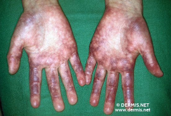localisation: hands diagnosis: Rothmund-Thomson Syndrome