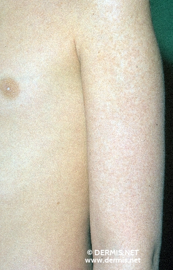 localisation: arms diagnosis: Keratosis Pilaris