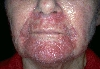 localisation: peri-oral, diagnosis: Perioral Dermatitis