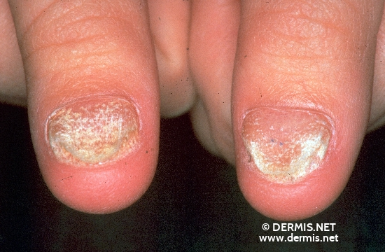 localisation: Fingernagel Diagnose: Twenty-Nail-Dystrophy