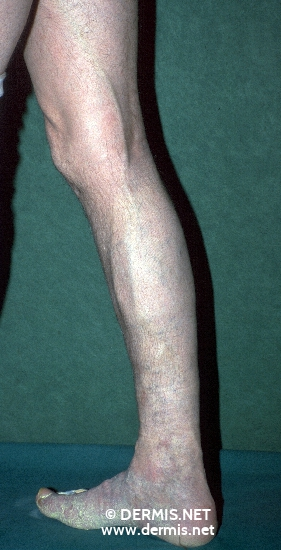 diagnóstico: Chronic Venous Insufficiency, Grade II