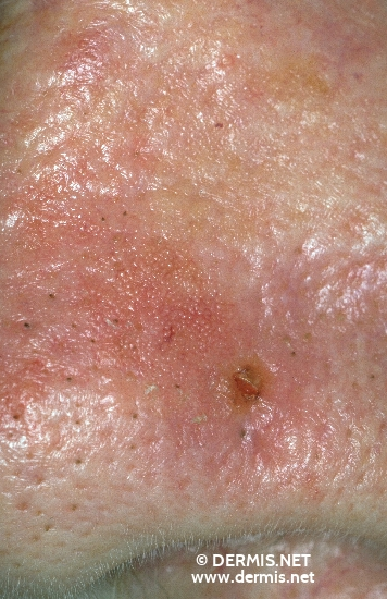 diagnosis: Basal Cell Carcinoma, Morpheiform