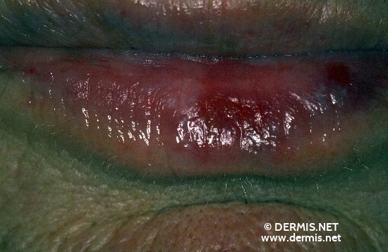 diagnóstico: Carcinoma of Lip