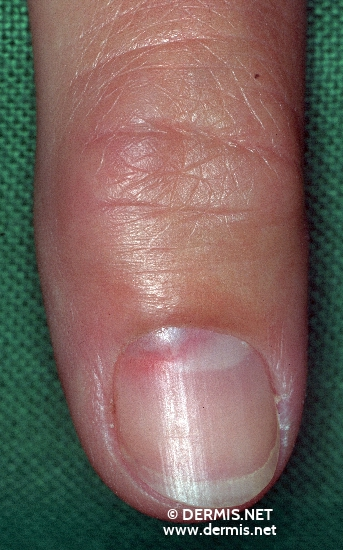 localisation: subungual (fingernail) diagnosis: Glomus Tumour