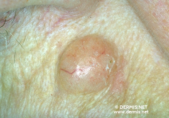localisation: naso-labial fold diagnosis: Solid-Cystic Basal Cell Carcinoma