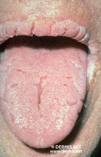 localisation: lips (skin) tongue diagnosis: Acanthosis Nigricans Maligna