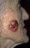 localisation: cheek, diagnosis: Squamous Cell Carcinoma, Chronic Actinic Skin Damage
