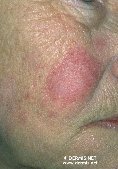 diagnosis: Subacute Cutaneous Lupus Erythematosus SCLE