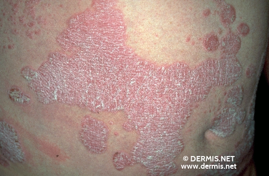 diagnosis: Psoriasis Vulgaris, Chronic Stationary Type