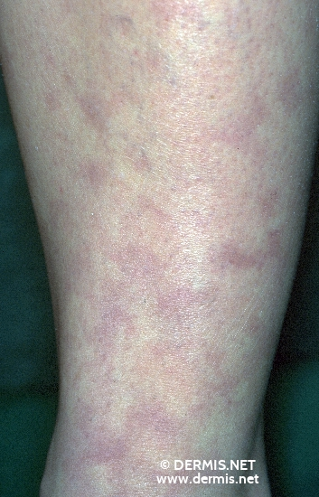 diagnosis: Livedo Reticularis