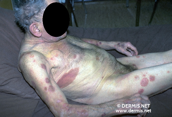 diagnosis: Mycosis Fungoides