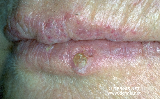 diagnosis: Carcinoma of Lip