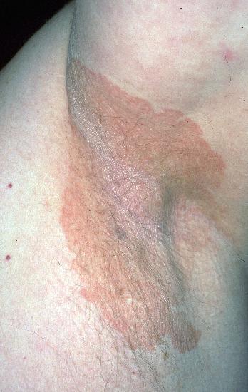Trattamento di faccia di pelle grossa e pelle di problema