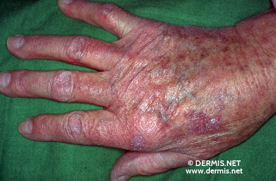 diagnosis: Actinic Keratosis Lentigo Senilis Knuckle Pads, False