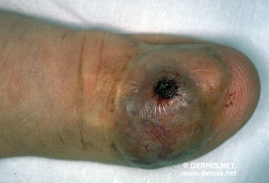 localisation: finger diagnosis: Acrolentiginous Melanoma (ALM)