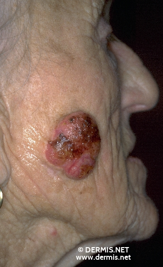 localisation: cheek diagnosis: Squamous Cell Carcinoma Chronic Actinic Skin Damage