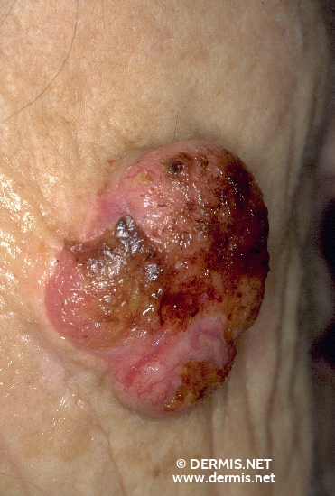 diagnosis: Squamous Cell Carcinoma Chronic Actinic Skin Damage