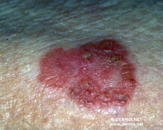 diagnosis: Bowen's Disease Chronic Actinic Skin Damage