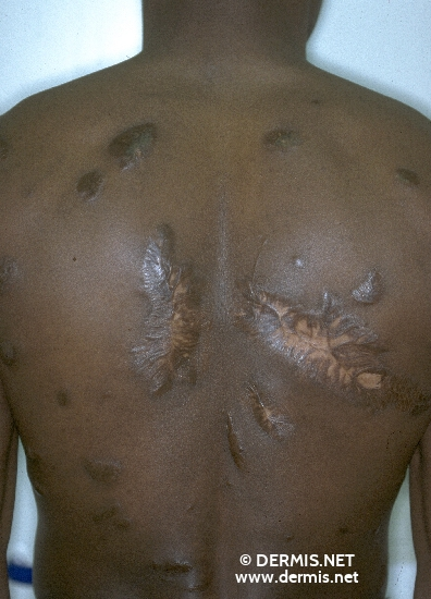diagnosis: Keloids in Scars