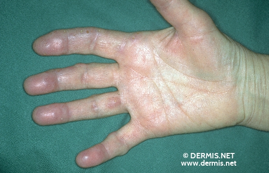 diagnosis: Chronic Polyarthritis