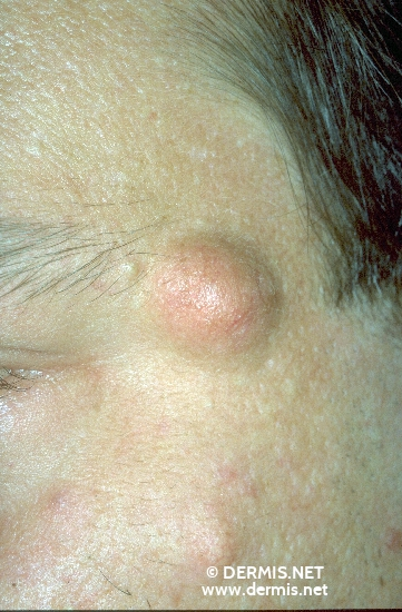diagnosis: Acne Comedonica Epidermal Cyst