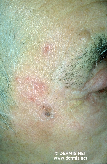 diagnosis: Solid-Cystic Basal Cell Carcinoma Nevocytic Nevus