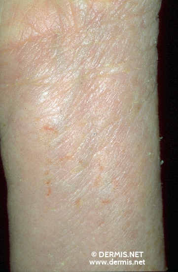 diagnosis: Atopic Eczema