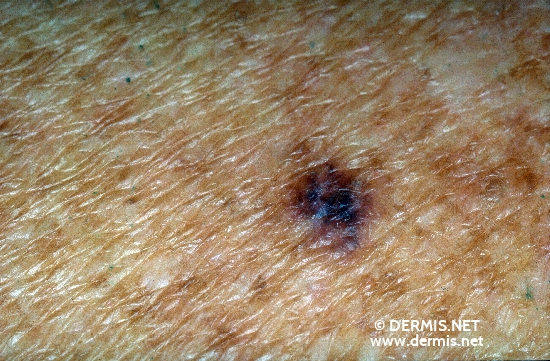 diagnostic: Mélanome superficiel extensif. Chronic Actinic Skin Damage