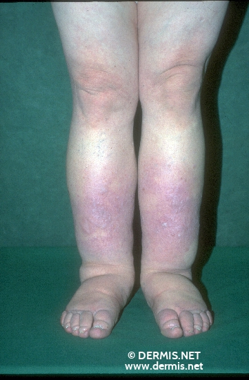 diagnosis: Lymphoedema