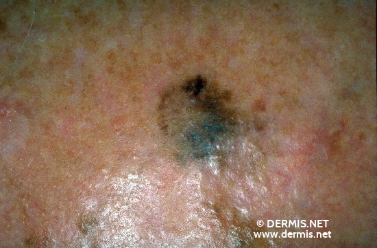 diagnosis: Lentigo Maligna Chronic Actinic Skin Damage