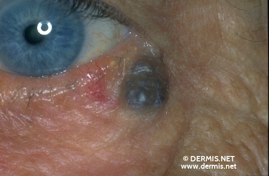 diagnostic: Hémangiome