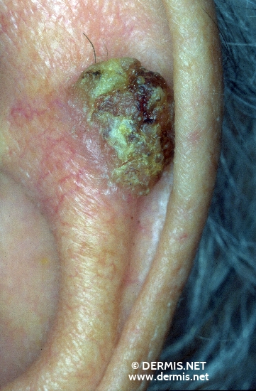diagnosis: Bowen's Carcinoma