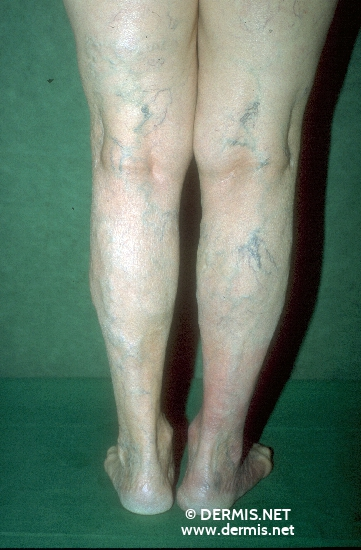 diagnosis: Chronic Venous Insufficiency, Grade II Acrodermatitis Chronica Atrophicans Herxheimer