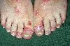 diagnosis: Psoriasis Vulgaris, Guttate Type, Psoriasis Vulgaris, Nail Changes