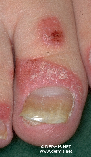 diagnosis: Psoriasis Vulgaris, Guttate Type Psoriasis Vulgaris, Nail Changes