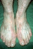 Diagnose: Erythrokeratodermia figurata et variabilis