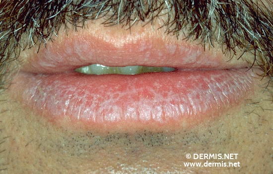 diagnóstico: Lichen Planus of the Mucosa