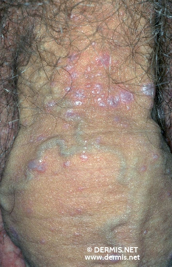 diagnosis: Lichen Planus