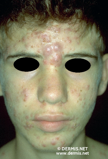 diagnostic: Acne Conglobata