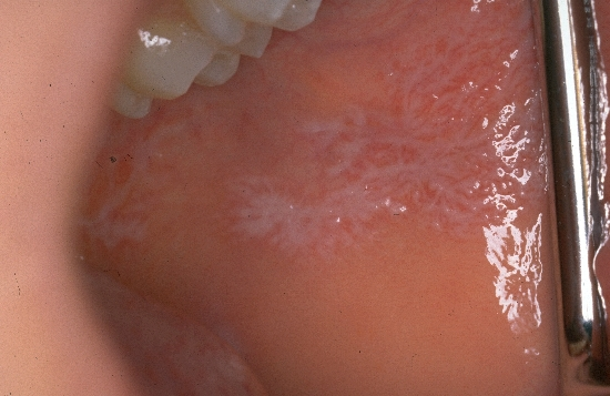 diagnosis: Lichen Planus of the Mucosa