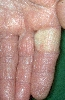 diagnóstico: Raynaud, síndrome de