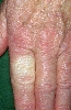 Diagnose: Raynaud-Syndrom