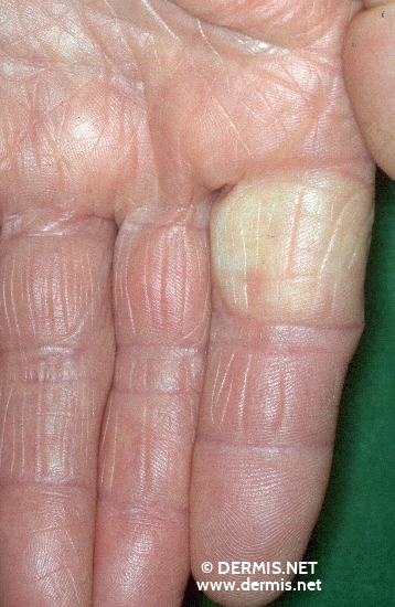diagnosis: Raynaud's Syndrome