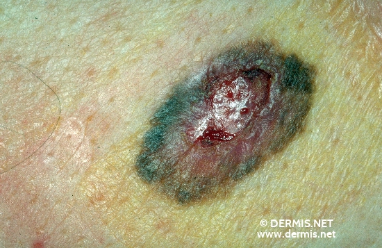 diagnóstico: Melanoma extensivo superficial (MES)