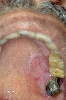 diagnostic: Lichen Planus of the Mucosa